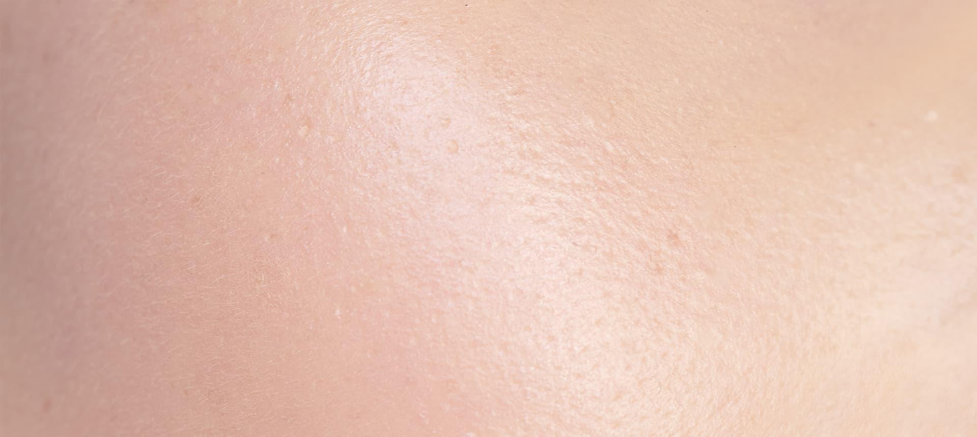 Impactos del exposoma:Los efectos sobre la piel