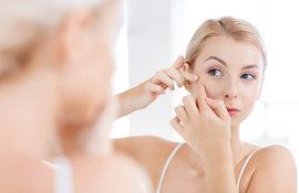 Acné hormonal: ¿cómo controlarlo? 2