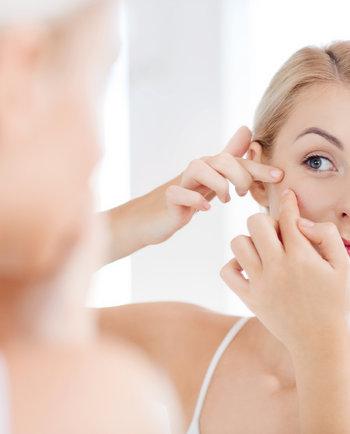 ¿Qué es el acné hormonal?