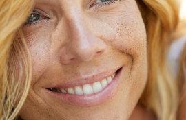 Uneven skin tone treatment